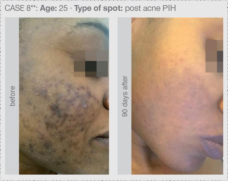 postinflammatoriska pigmenteringar efter akne